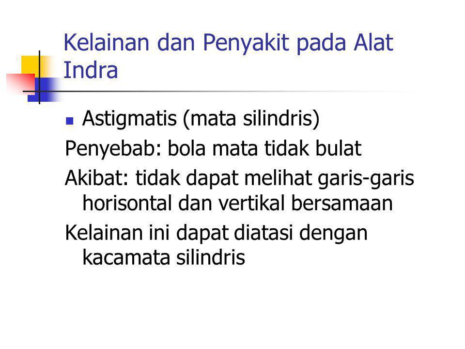 Kelainan dan Penyakit pada Alat Indra Astigmatis (mata silindris) Penyebab: bola mata tidak bulat Akibat: tidak dapat melihat garis-garis horisontal d