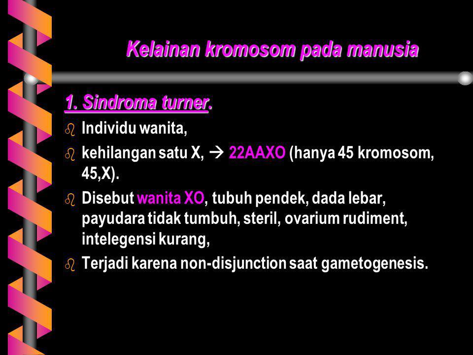 Kelainan kromosom pada manusia 1. Sindroma turner. b b Individu wanita, b b kehilangan satu X,  22AAXO (hanya 45 kromosom, 45,X). b b Disebut wanita