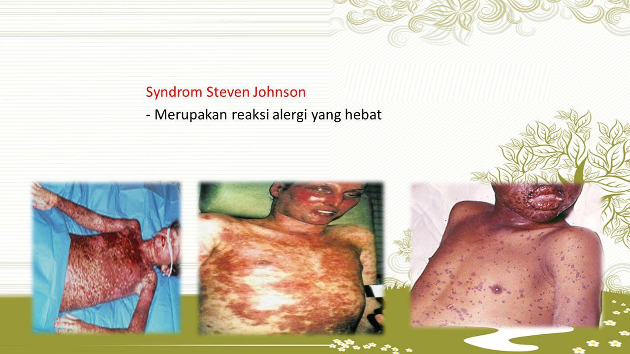 Syndrom Steven Johnson - Merupakan reaksi alergi yang hebat