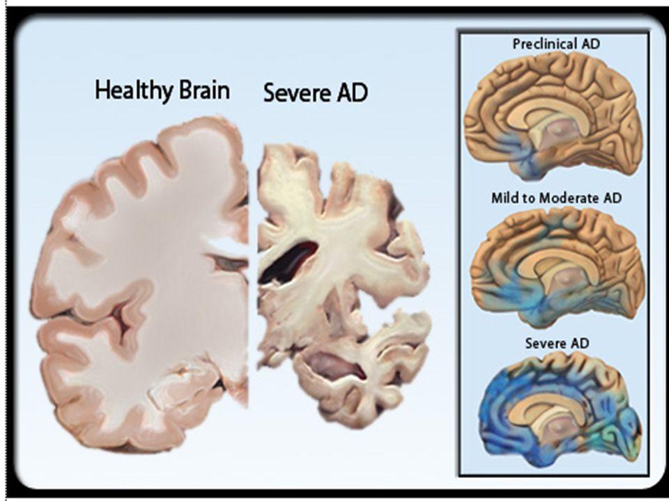  Ada gangguan memori  Kognitif baik  Sebagai risiko tinggi untuk menjadi alzheimer (setelah ± 4 tahun 50% menjadi demensia)  Patologis : sudah ada