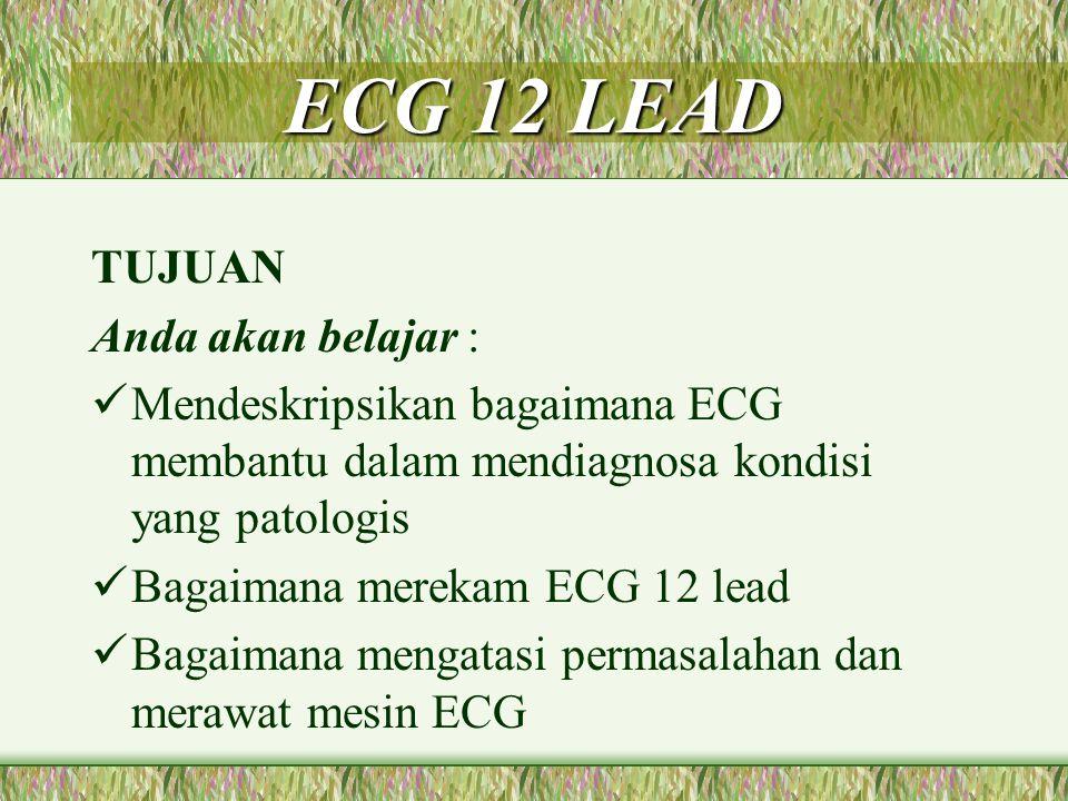 ECG 12 LEAD Merekam aktivitas listrik melalui elektrode yang ditempatkan pada titik-titik tertentu Elektrode dpt berupa piringan, lempengan metal, cups penghisap Memberikan gambaran yang > lengkap daripada sebuah strip irama Dapat mendiagnosa angina & IMA Dapat mengkaji fungsi dari ventrikel kiri