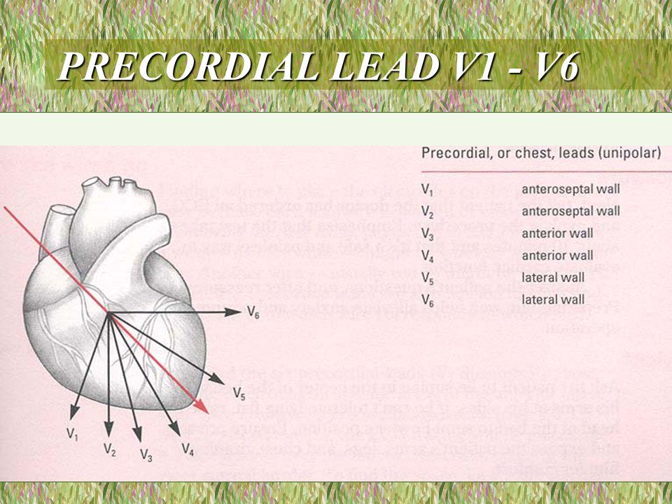 PRECORDIAL LEAD V1 - V6