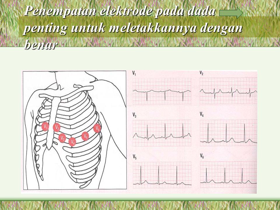 Penempatan elektrode pada dada penting untuk meletakkannya dengan benar