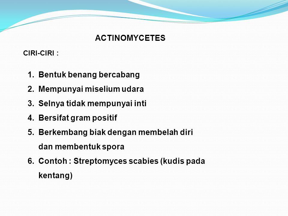 ACTINOMYCETES CIRI-CIRI : 1.Bentuk benang bercabang 2.Mempunyai miselium udara 3.Selnya tidak mempunyai inti 4.Bersifat gram positif 5.Berkembang biak