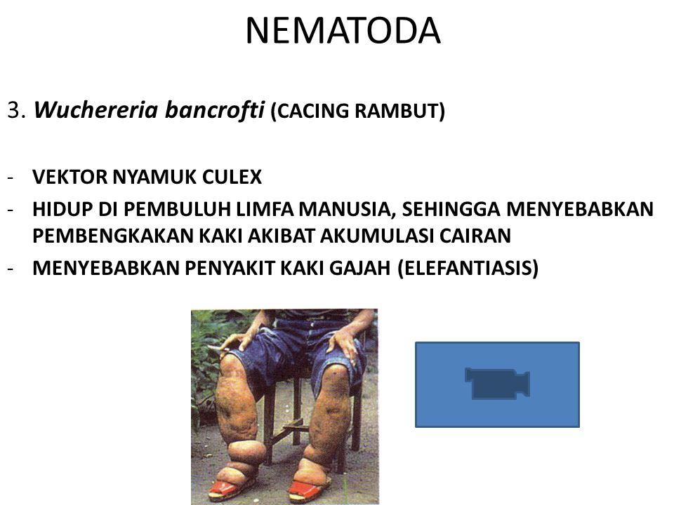 NEMATODA 3. Wuchereria bancrofti (CACING RAMBUT) -VEKTOR NYAMUK CULEX -HIDUP DI PEMBULUH LIMFA MANUSIA, SEHINGGA MENYEBABKAN PEMBENGKAKAN KAKI AKIBAT
