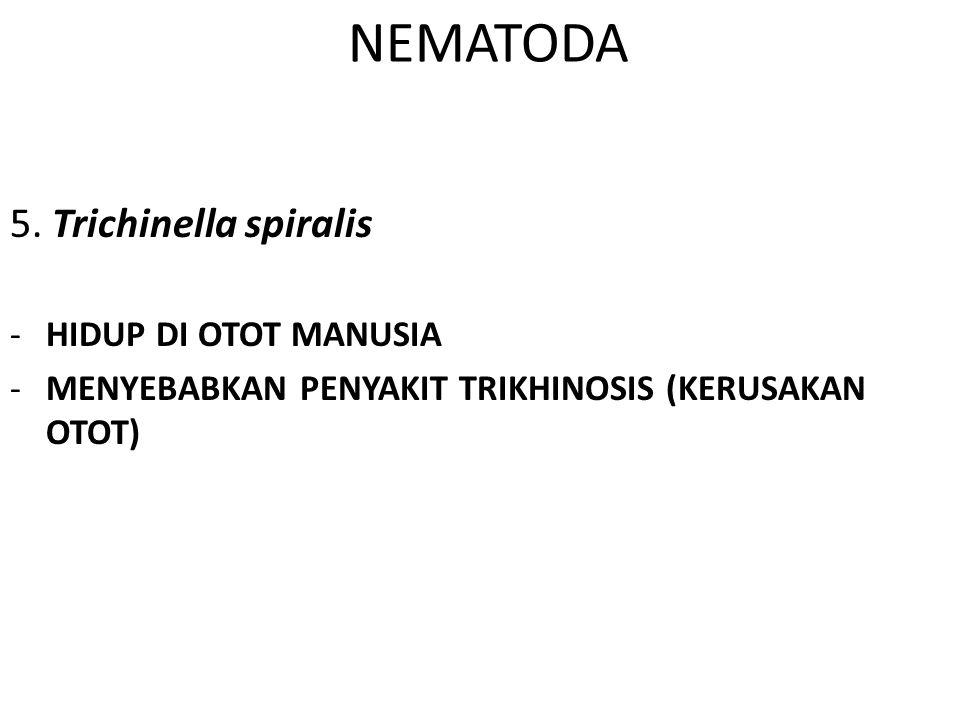 NEMATODA 5. Trichinella spiralis -HIDUP DI OTOT MANUSIA -MENYEBABKAN PENYAKIT TRIKHINOSIS (KERUSAKAN OTOT)
