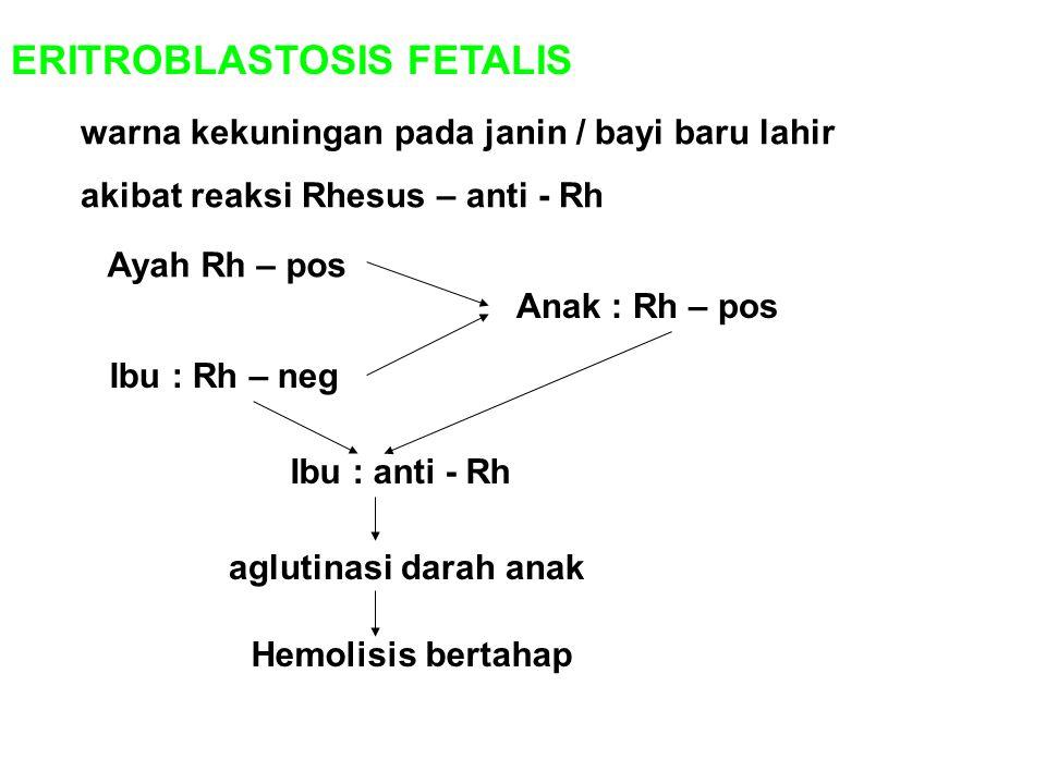 ERITROBLASTOSIS FETALIS warna kekuningan pada janin / bayi baru lahir akibat reaksi Rhesus – anti - Rh Ayah Rh – pos Ibu : Rh – neg Anak : Rh – pos Ib