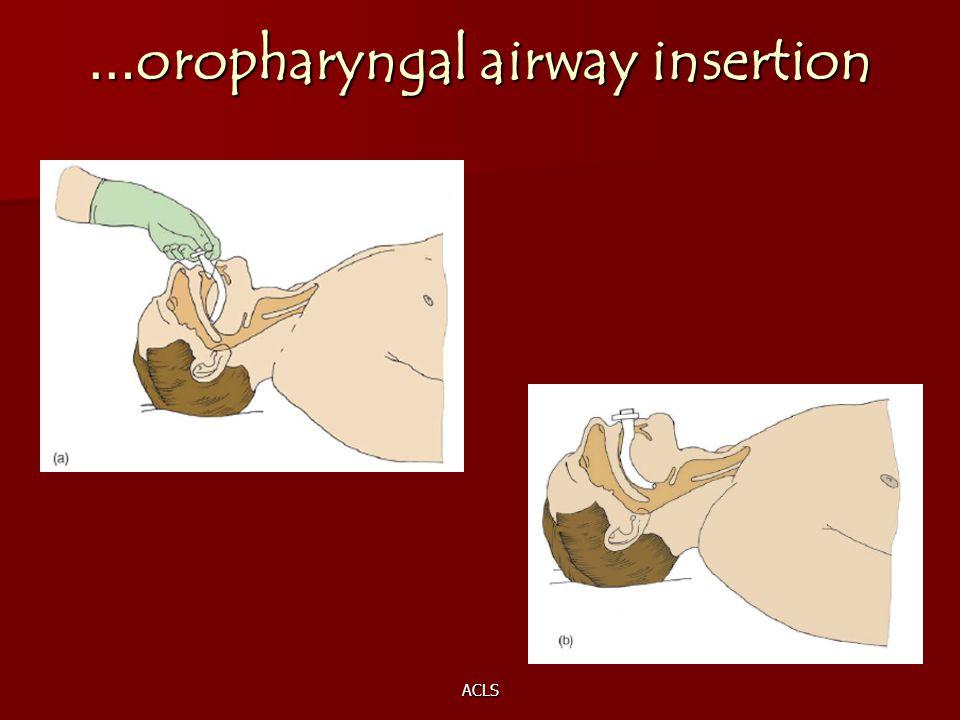 ACLS … oropharyngal airway insertion