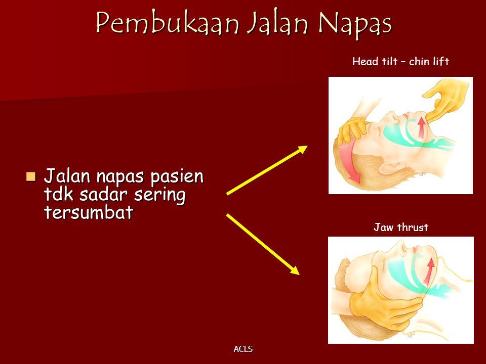 ACLS Pembukaan Jalan Napas Jalan napas pasien tdk sadar sering tersumbat Jalan napas pasien tdk sadar sering tersumbat Head tilt – chin lift Jaw thrus