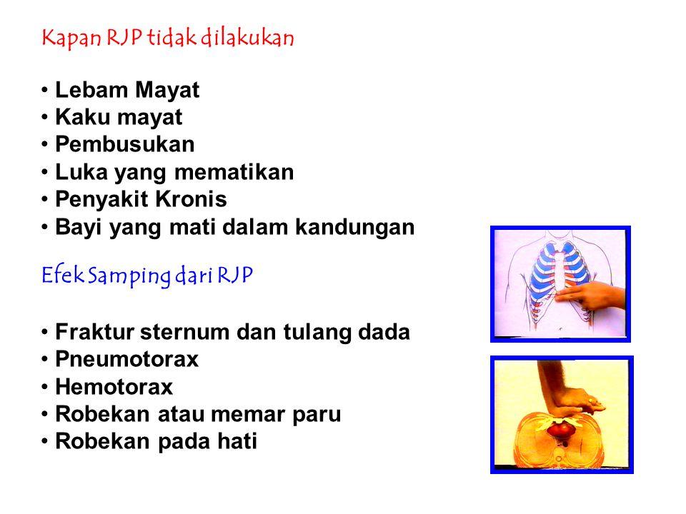 Kapan RJP tidak dilakukan Lebam Mayat Kaku mayat Pembusukan Luka yang mematikan Penyakit Kronis Bayi yang mati dalam kandungan Efek Samping dari RJP F