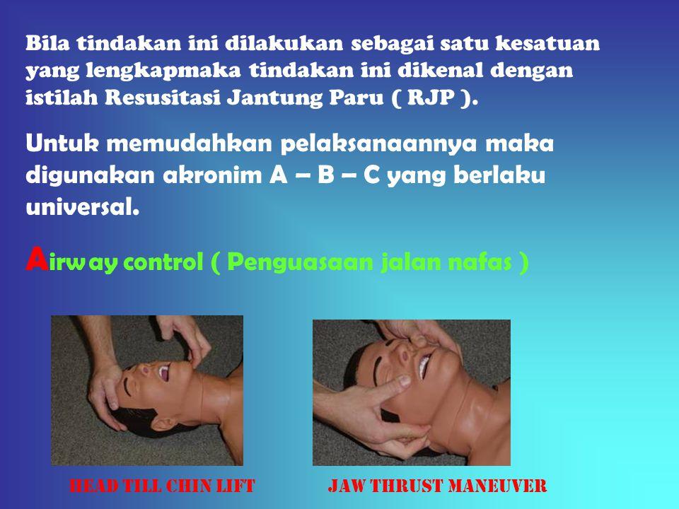Bila tindakan ini dilakukan sebagai satu kesatuan yang lengkapmaka tindakan ini dikenal dengan istilah Resusitasi Jantung Paru ( RJP ). Untuk memudahk