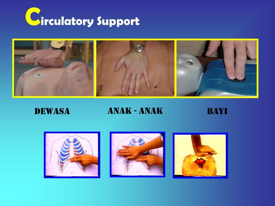 MEMBERSIHKAN JALAN NAFAS 1.Posisi Pemulihan Posisi ini dilakukan bila penderita dapat bernafas dengan baik dan tidak ada kecurigaan cedera yang dapat bertambah parah akibat tindakan ini.