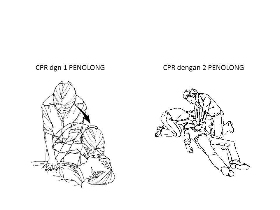 CPR dgn 1 PENOLONGCPR dengan 2 PENOLONG