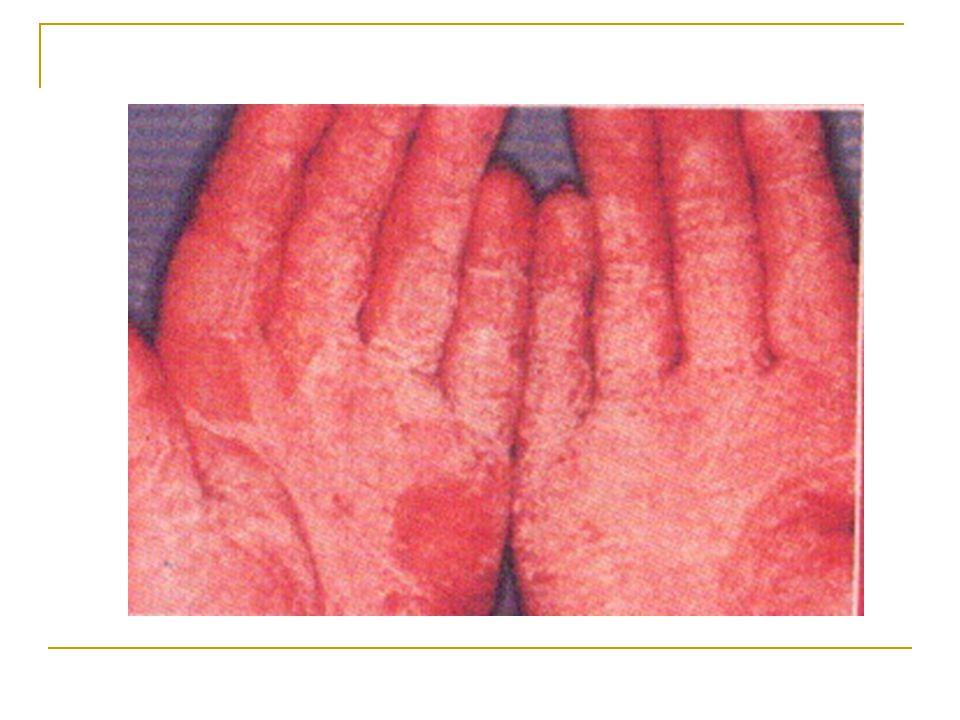 II.KUTU AIR terdapat di sela-sela jari kaki dan tangan.