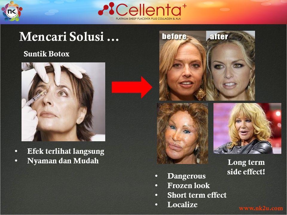 www.nk2u.com Efek terlihat langsung Nyaman dan Mudah Mencari Solusi … Suntik Botox Dangerous Frozen look Short term effect Localize Long term side effect!