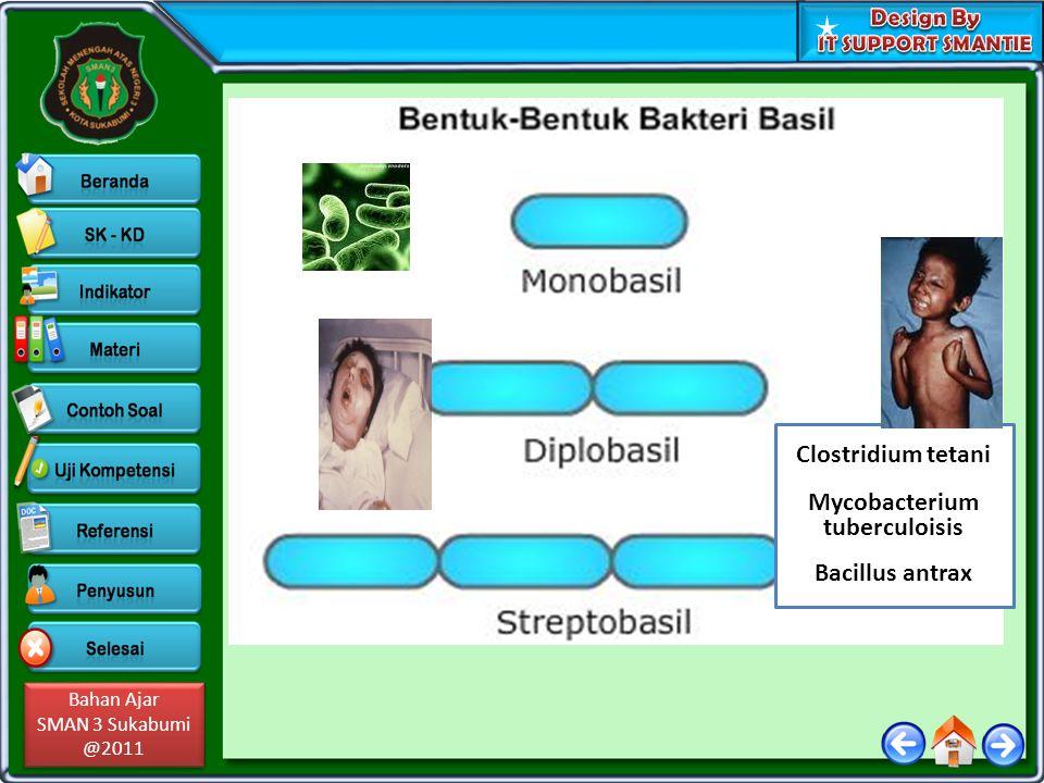 Bahan Ajar SMAN 3 Sukabumi @2011 Bahan Ajar SMAN 3 Sukabumi @2011 Clostridium tetani Mycobacterium tuberculoisis Bacillus antrax