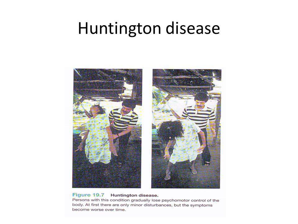 Huntington disease Tuti N., dkkd