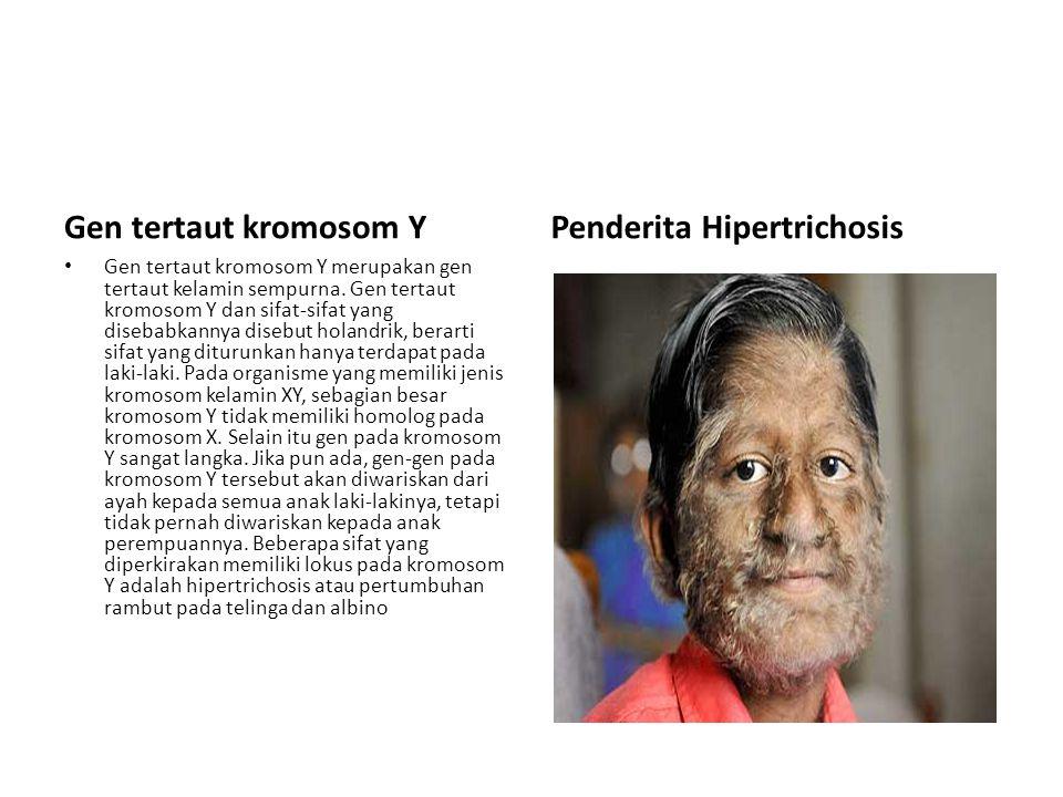 Gen tertaut kromosom Y Gen tertaut kromosom Y merupakan gen tertaut kelamin sempurna.