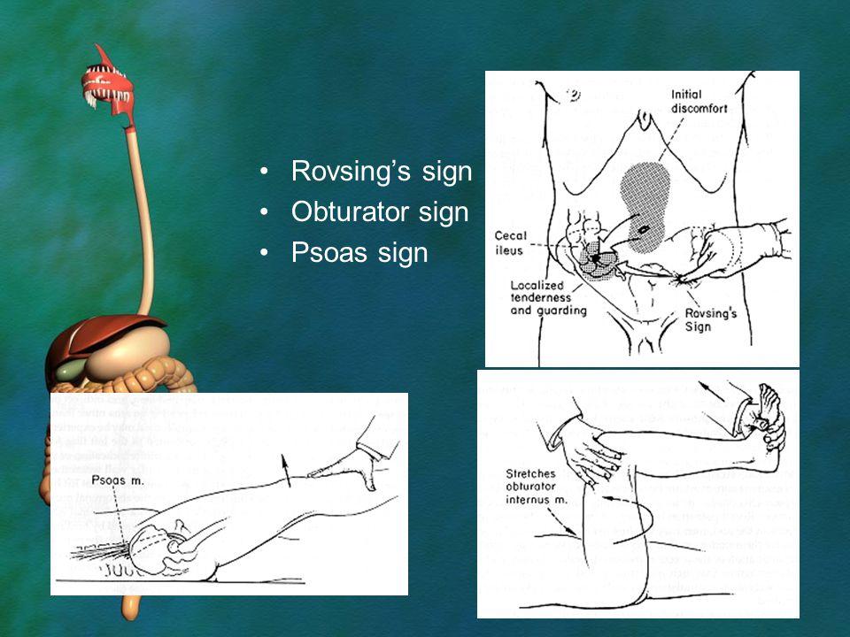 Rovsing's sign Obturator sign Psoas sign