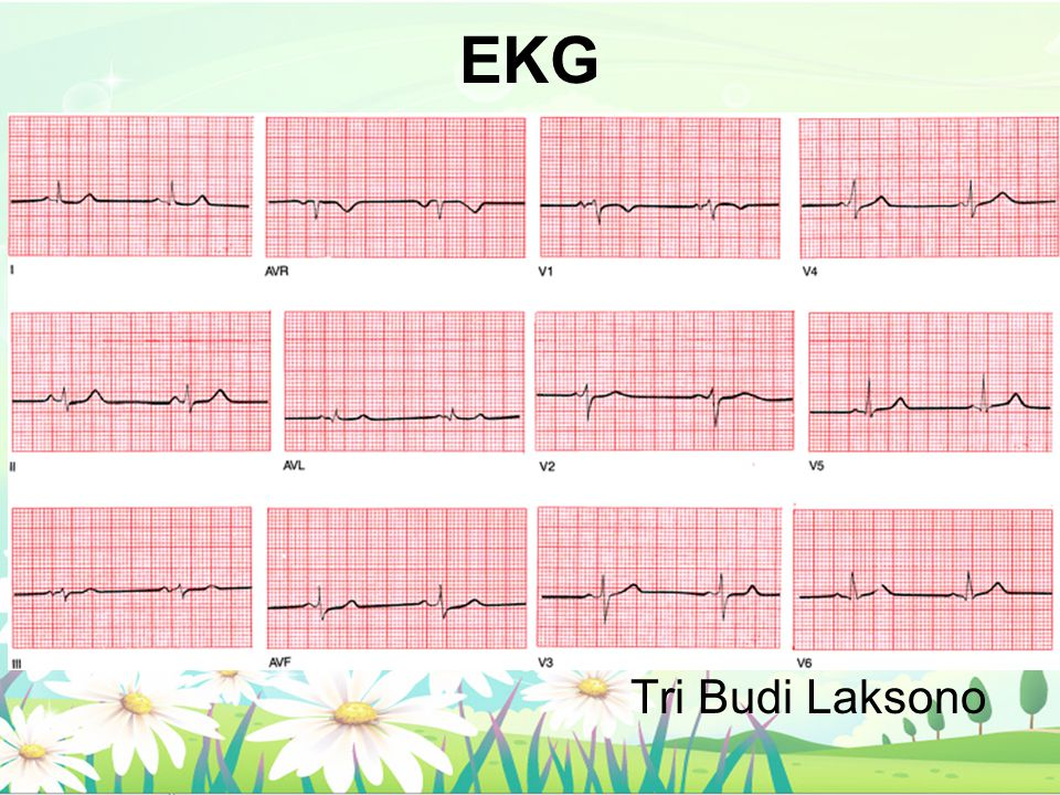 Penting Utk Diketahui EKG: rekaman aktivitas listrik jantung Depolarisasi: Sel jantung kehilangan negativitas internalnya Repolarisasi: Sel jantung mengembalikan negativitas internalnya