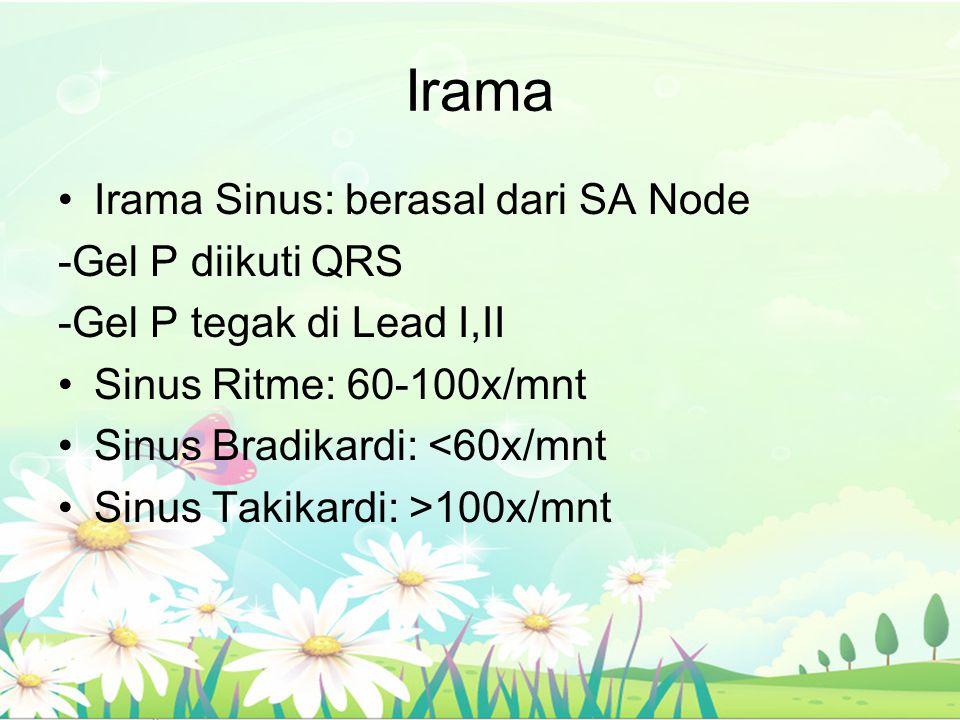 Irama Irama Sinus: berasal dari SA Node -Gel P diikuti QRS -Gel P tegak di Lead I,II Sinus Ritme: 60-100x/mnt Sinus Bradikardi: <60x/mnt Sinus Takikar