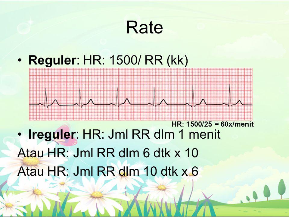 Rate Reguler: HR: 1500/ RR (kk) Ireguler: HR: Jml RR dlm 1 menit Atau HR: Jml RR dlm 6 dtk x 10 Atau HR: Jml RR dlm 10 dtk x 6 HR: 1500/25 = 60x/menit