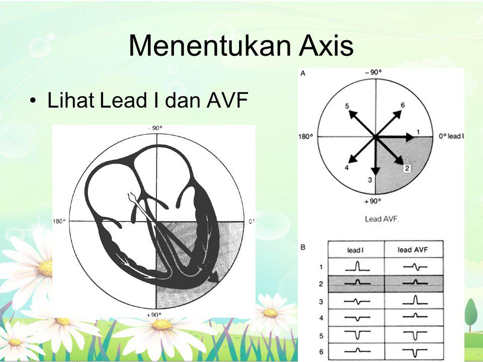 Menentukan Axis Lihat Lead I dan AVF