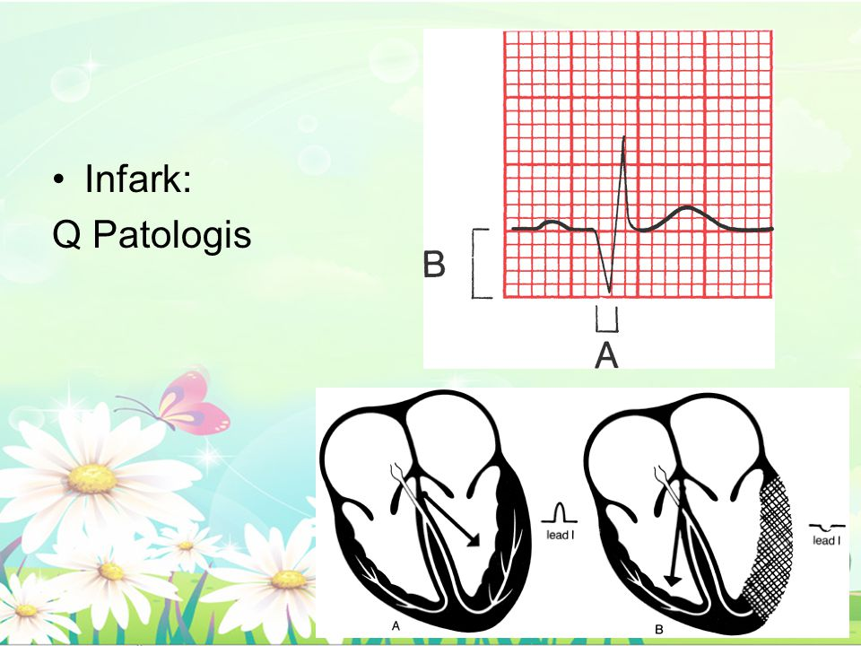 Infark: Q Patologis