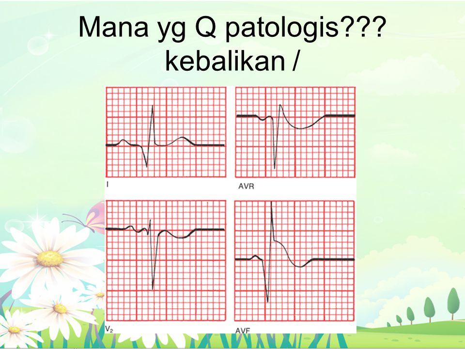 Mana yg Q patologis??? kebalikan /