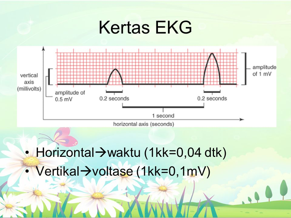 Kertas EKG Horizontal  waktu (1kk=0,04 dtk) Vertikal  voltase (1kk=0,1mV)