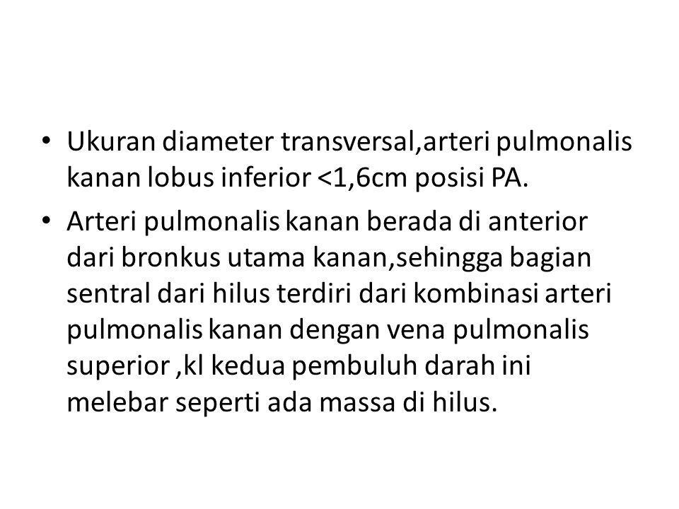 Ukuran diameter transversal,arteri pulmonalis kanan lobus inferior <1,6cm posisi PA. Arteri pulmonalis kanan berada di anterior dari bronkus utama kan