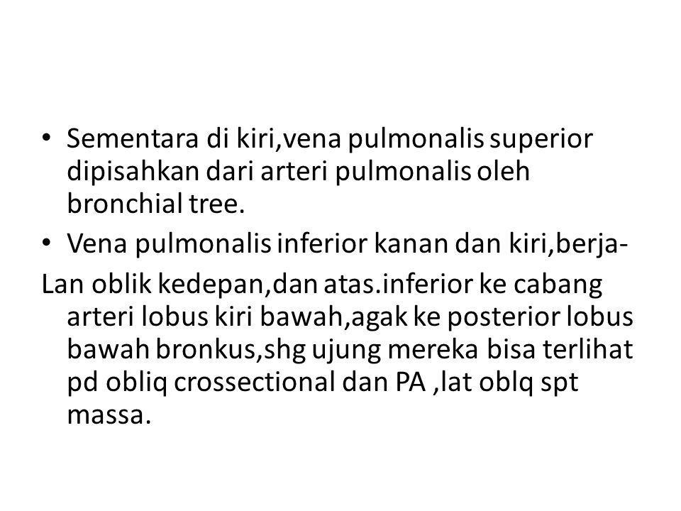 Sementara di kiri,vena pulmonalis superior dipisahkan dari arteri pulmonalis oleh bronchial tree. Vena pulmonalis inferior kanan dan kiri,berja- Lan o