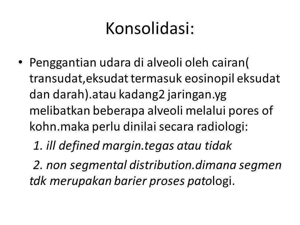 Konsolidasi: Penggantian udara di alveoli oleh cairan( transudat,eksudat termasuk eosinopil eksudat dan darah).atau kadang2 jaringan.yg melibatkan beb