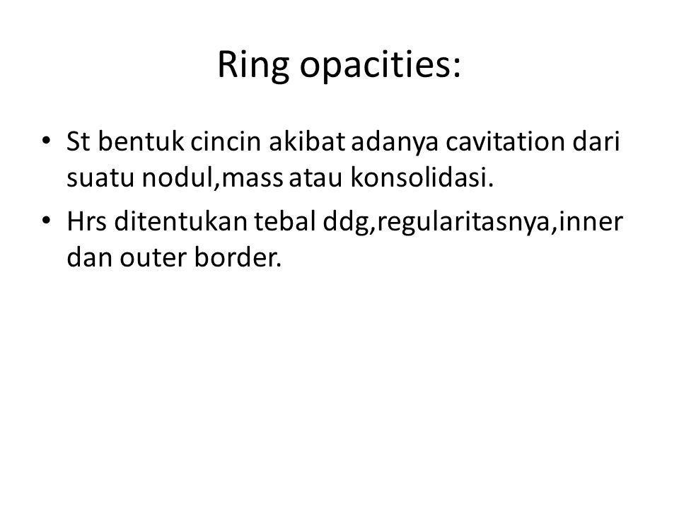 Ring opacities: St bentuk cincin akibat adanya cavitation dari suatu nodul,mass atau konsolidasi. Hrs ditentukan tebal ddg,regularitasnya,inner dan ou