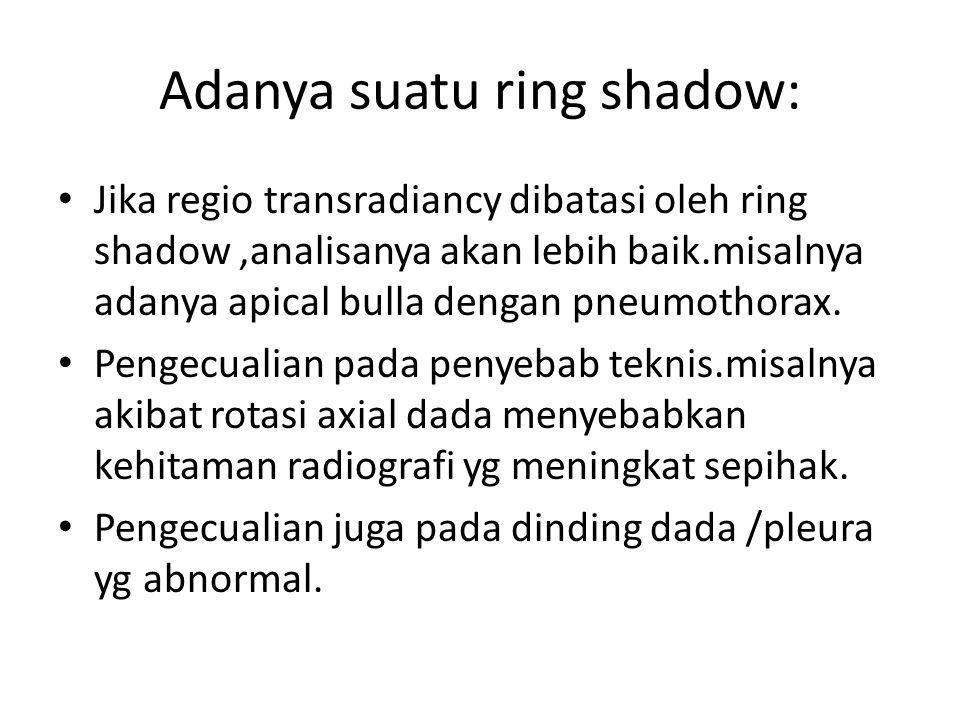 Adanya suatu ring shadow: Jika regio transradiancy dibatasi oleh ring shadow,analisanya akan lebih baik.misalnya adanya apical bulla dengan pneumothor