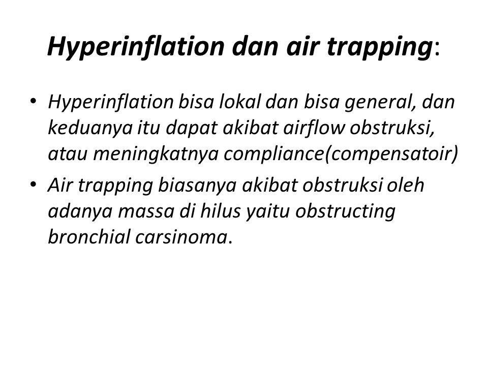 Hyperinflation dan air trapping: Hyperinflation bisa lokal dan bisa general, dan keduanya itu dapat akibat airflow obstruksi, atau meningkatnya compli