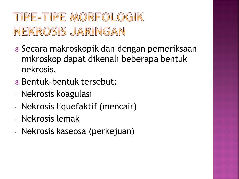  Secara makroskopik dan dengan pemeriksaan mikroskop dapat dikenali beberapa bentuk nekrosis.