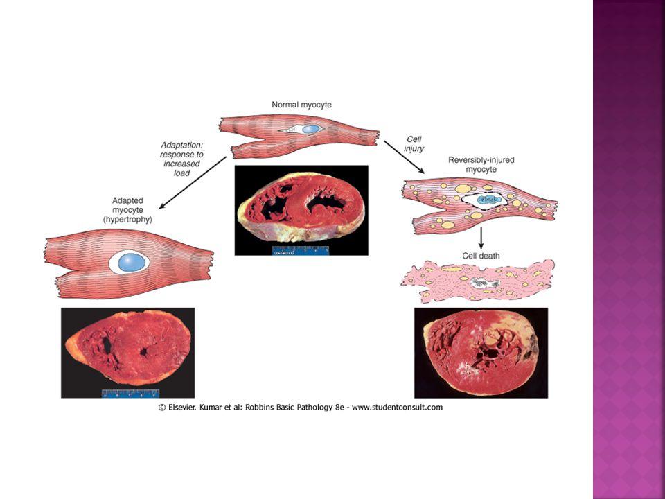  Ditandai oleh larutnya jaringan akibat lisis enzimatik sel-sel yang mati.