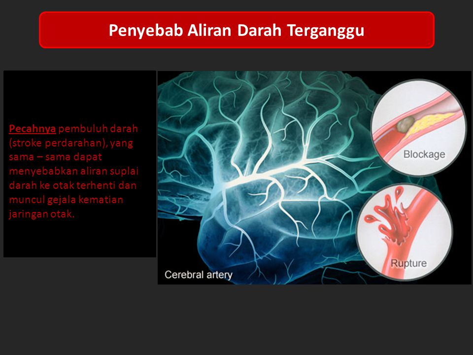 Penyebab Aliran Darah Terganggu Terbentuknya sumbatan pada pembuluh darah ( stroke iskemik ).