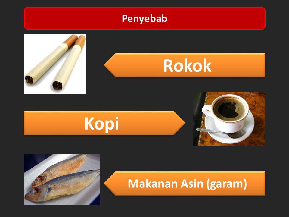 Kopi Makanan Asin (garam) Rokok Penyebab