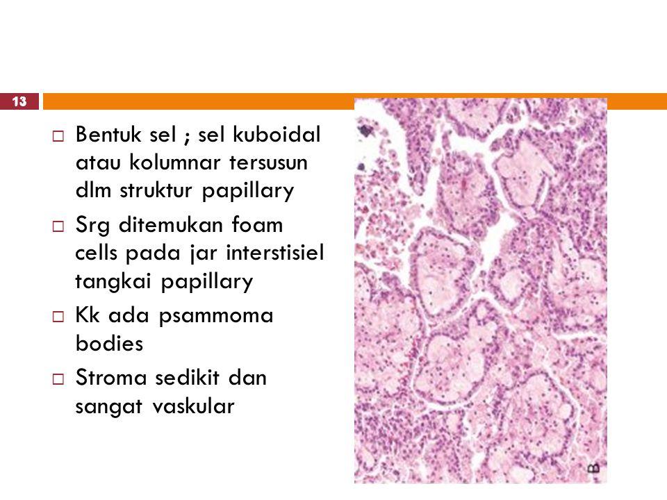 13  Bentuk sel ; sel kuboidal atau kolumnar tersusun dlm struktur papillary  Srg ditemukan foam cells pada jar interstisiel tangkai papillary  Kk a