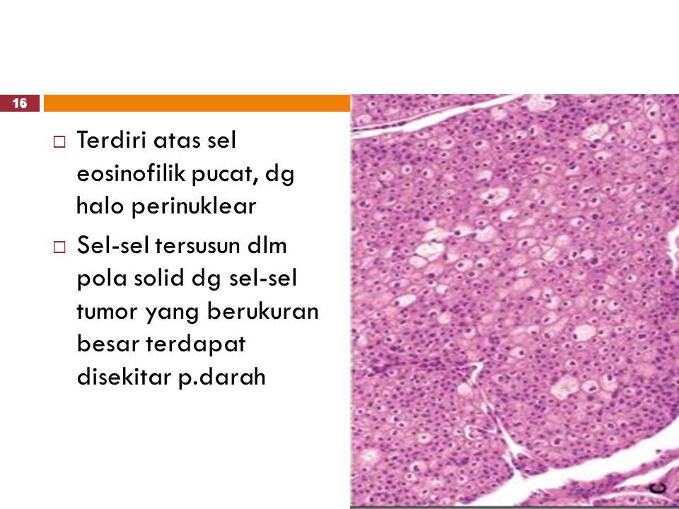 16  Terdiri atas sel eosinofilik pucat, dg halo perinuklear  Sel-sel tersusun dlm pola solid dg sel-sel tumor yang berukuran besar terdapat disekita