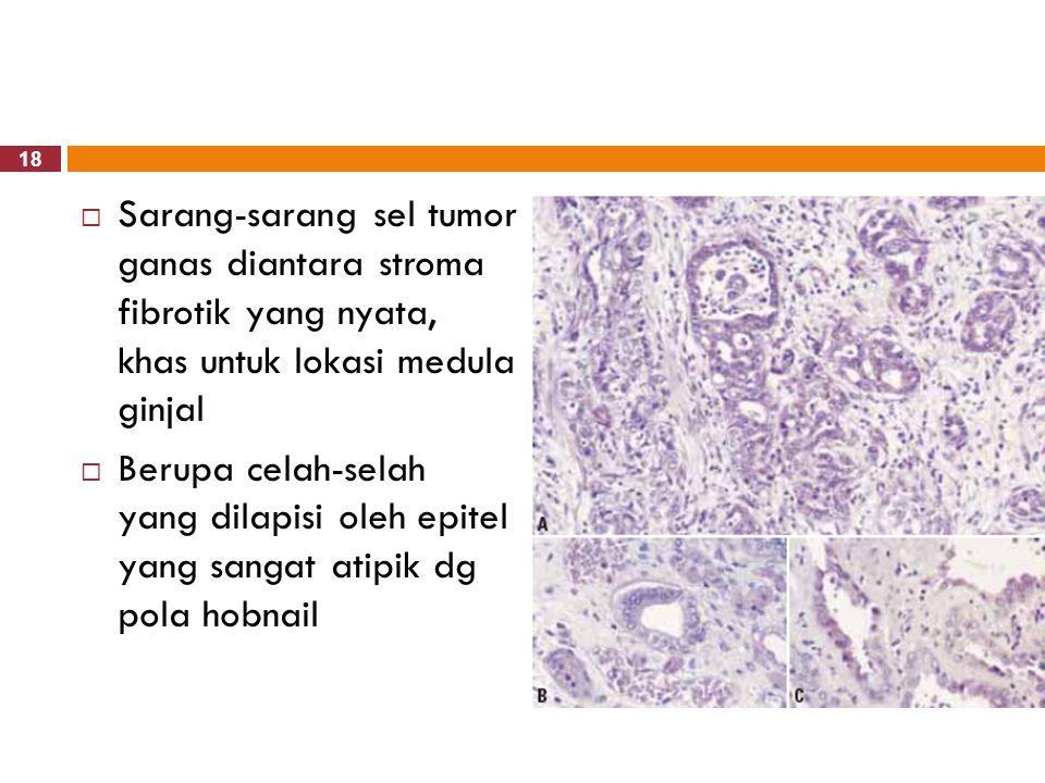 18  Sarang-sarang sel tumor ganas diantara stroma fibrotik yang nyata, khas untuk lokasi medula ginjal  Berupa celah-selah yang dilapisi oleh epitel