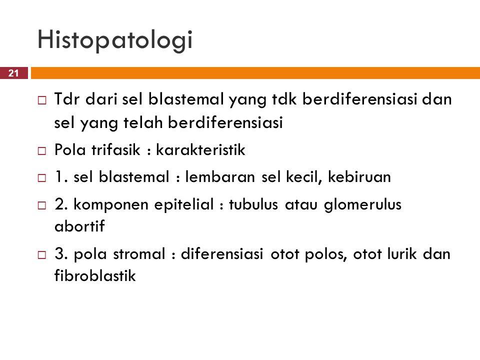 21 Histopatologi  Tdr dari sel blastemal yang tdk berdiferensiasi dan sel yang telah berdiferensiasi  Pola trifasik : karakteristik  1. sel blastem