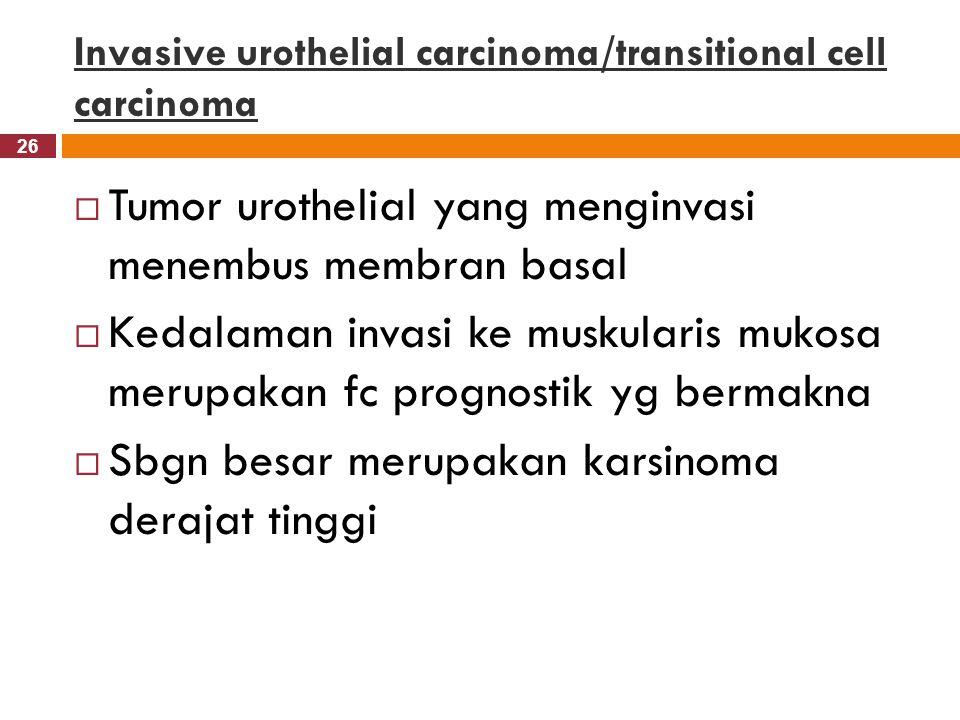 26 Invasive urothelial carcinoma/transitional cell carcinoma  Tumor urothelial yang menginvasi menembus membran basal  Kedalaman invasi ke muskulari