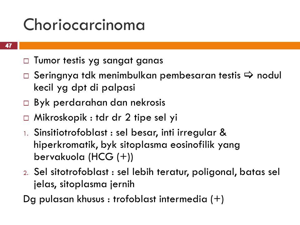 47 Choriocarcinoma 47  Tumor testis yg sangat ganas  Seringnya tdk menimbulkan pembesaran testis  nodul kecil yg dpt di palpasi  Byk perdarahan da