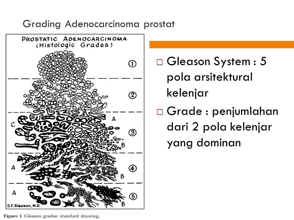 60 Grading Adenocarcinoma prostat  Gleason System : 5 pola arsitektural kelenjar  Grade : penjumlahan dari 2 pola kelenjar yang dominan