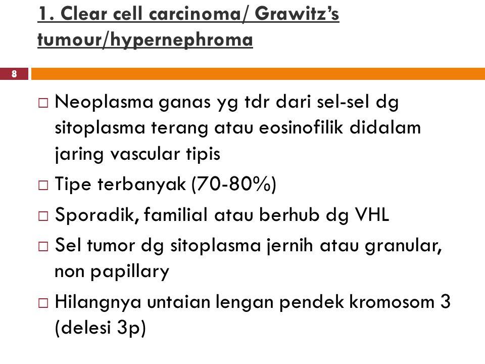 8 1. Clear cell carcinoma/ Grawitz's tumour/hypernephroma 8  Neoplasma ganas yg tdr dari sel-sel dg sitoplasma terang atau eosinofilik didalam jaring