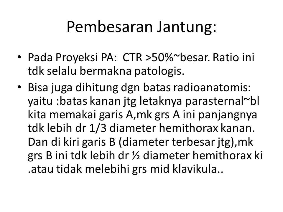 Pembesaran Jantung: Pada Proyeksi PA: CTR >50%~besar. Ratio ini tdk selalu bermakna patologis. Bisa juga dihitung dgn batas radioanatomis: yaitu :bata