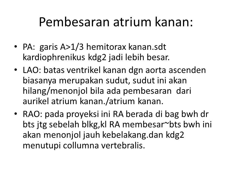 Pembesaran atrium kanan: PA: garis A>1/3 hemitorax kanan.sdt kardiophrenikus kdg2 jadi lebih besar. LAO: batas ventrikel kanan dgn aorta ascenden bias